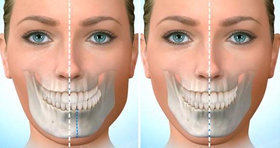 Image result for diş kemiği erimesi